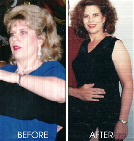 Janis Pullen Before & After